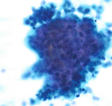 子宮 内 膜 異型 増殖 症